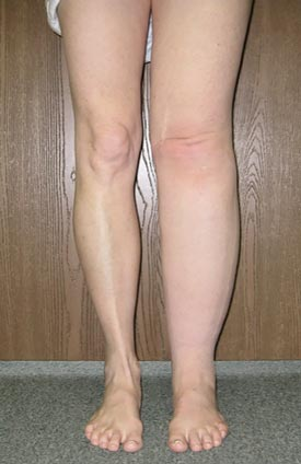 Lymphedema of the legs